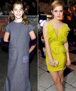 Then and Now: Harry Potter Stars Transform