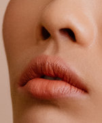 So You're Done With Your Lip Fillers—What Now?