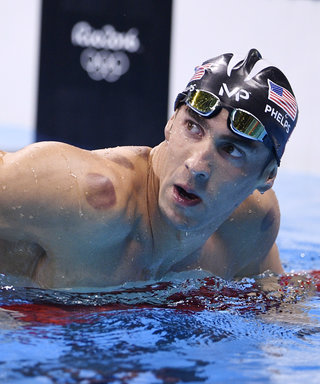 I Tried It: Cupping, the Ancient Healing Therapy That's Taking the Olympics By Storm