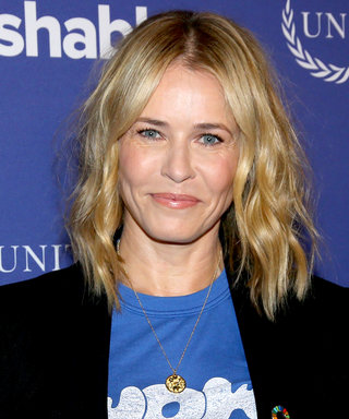 "This ""Before and After"" Photo of Chelsea Handler Will Blow Your Mind"