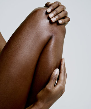 What You Really Need to Know About Treating Stretch Marks
