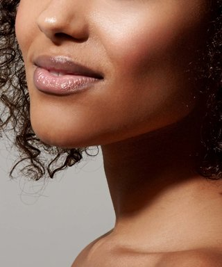 Having Eczema on My Face Changed My Life—For the Better