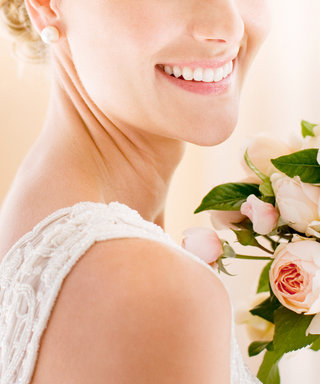 What to Know About Whitening Your Teeth Before the Wedding