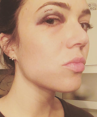 Mandy Moore Got a Black Eye From the Strangest Accident