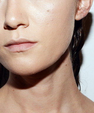 The Tiny Bumps You Think Are Whiteheads Might Really Be Something Else