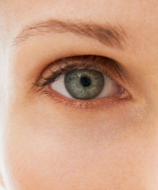 Here's Why You Have Dark Under-Eye Circles—and How You Can Fix Them