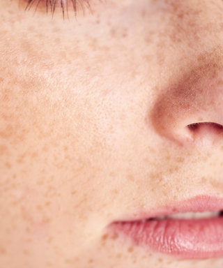 The Step You're Missing When Treating Blackheads, According to Dr. Pimple Popper
