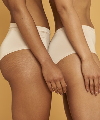 How to Get Rid of Butt Acne for Good