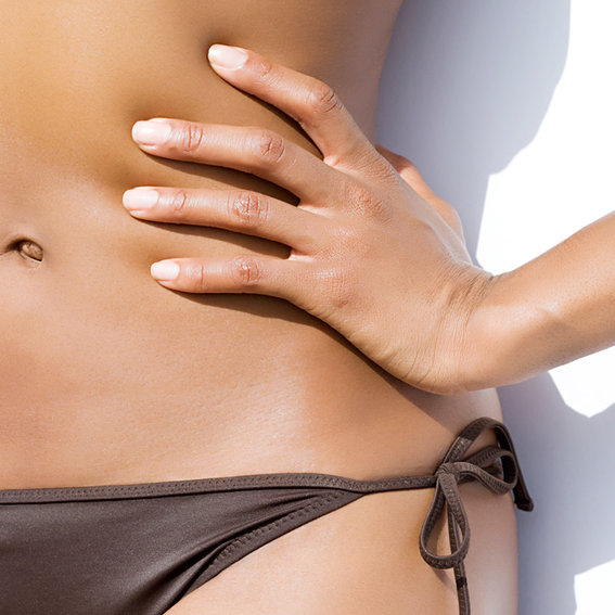 How to Fade the Appearance of Stretch Marks