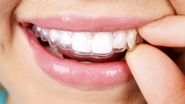The Pros And Cons Of Invisalign Instyle Com