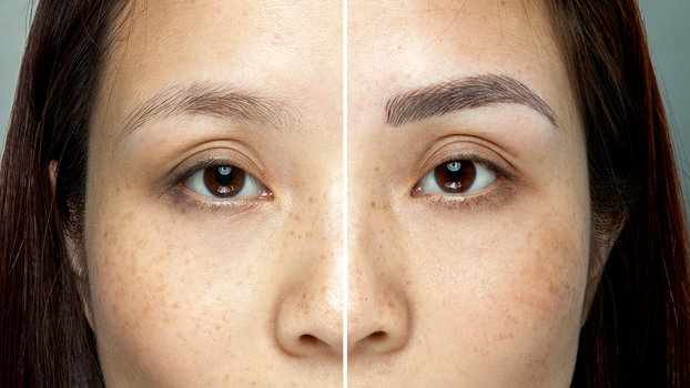 What Is Eyebrow Microblading? The Semi Permanent Brow Trend - What ...
