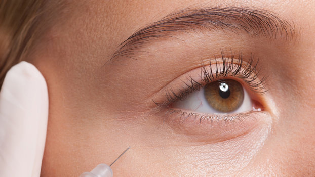 Here's Everything You Need to Know About Botox