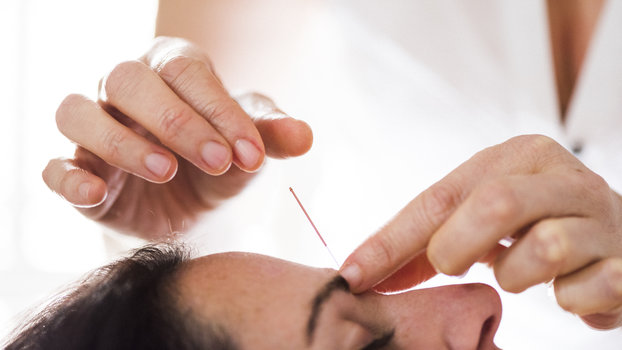 Woman having acupuncture treatment