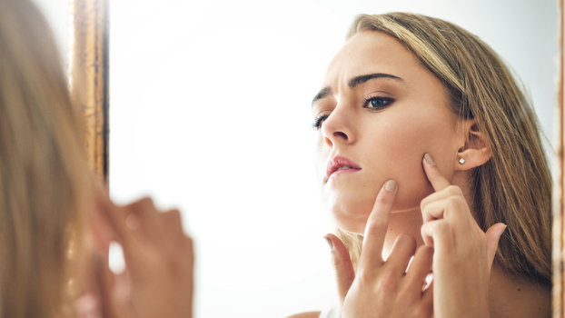 Acne Scars - Lead