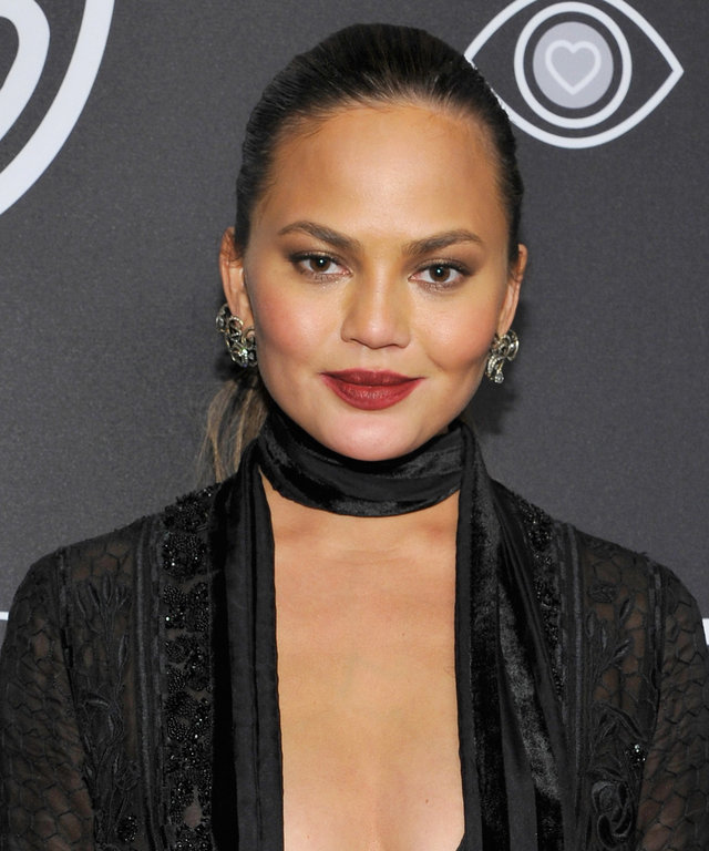 Chrissy Teigen Gets Real About Stretch Marks