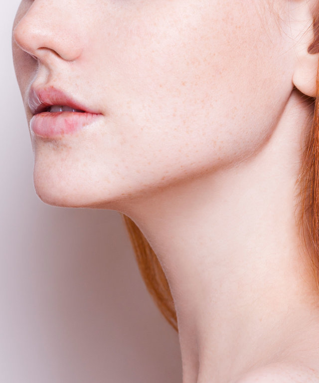 What To Expect When Using Tretinoin To Treat Acne | InStyle com