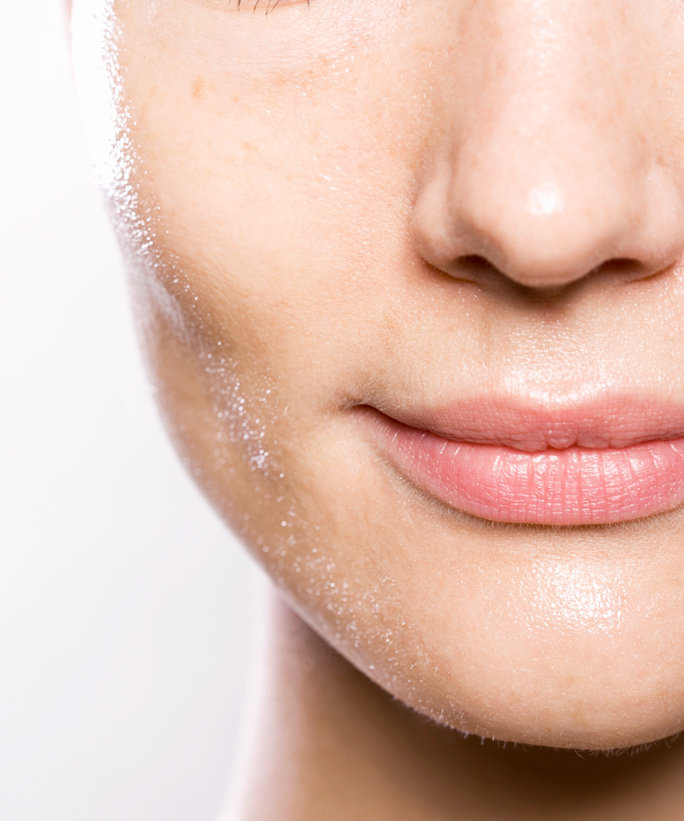 Why Your Hormones Might BeTaking Out Their Rage on Your Face