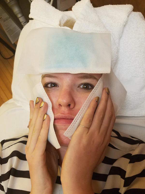 Laser Treatment for Acne - xoJane 2