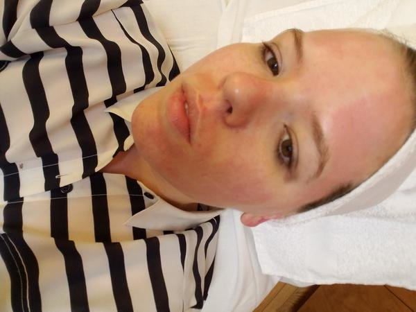 Laser Treatment for Acne - xoJane 4