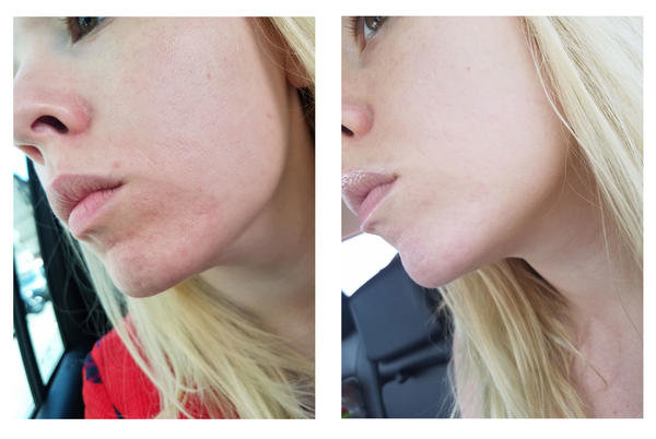 Laser Treatment for Acne - xoJane 5