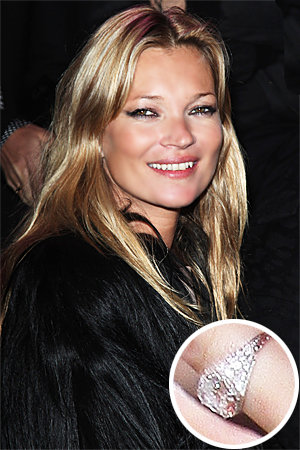 Kate Moss - Jamie Hince - The Hottest Celebrity Engagement Rings