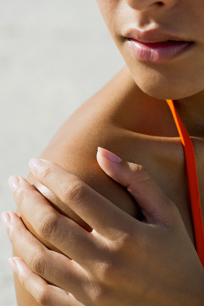 How to Soothe a Beyond-Painful Sunburn