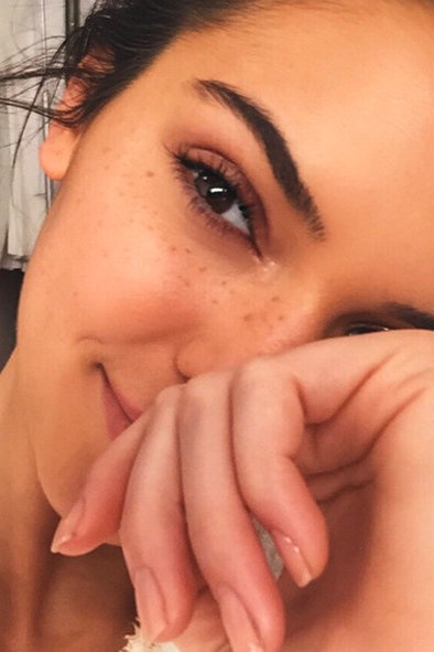Freckles – They're Soooo SS15